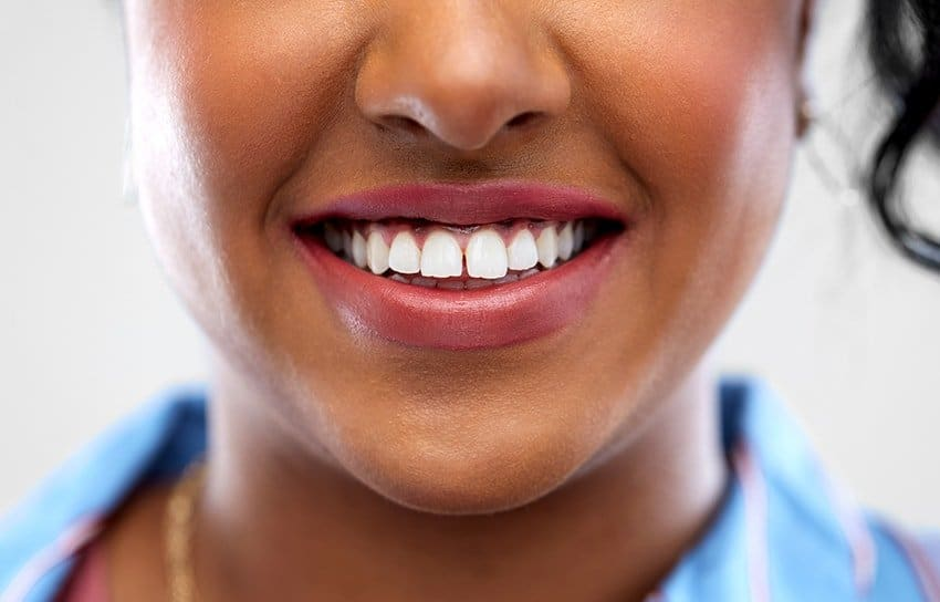 Close up of african american woman face with smile and white teeth with a gap. If you have a gap in your smile, it might make you self-conscious. Fortunately, if you've decided that you want to close the gap in your smile, we have options. But make sure you're happy with that decision first.