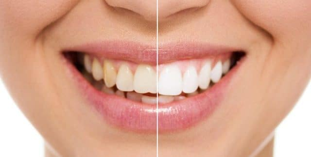 Face showing before and after teeth whitening
